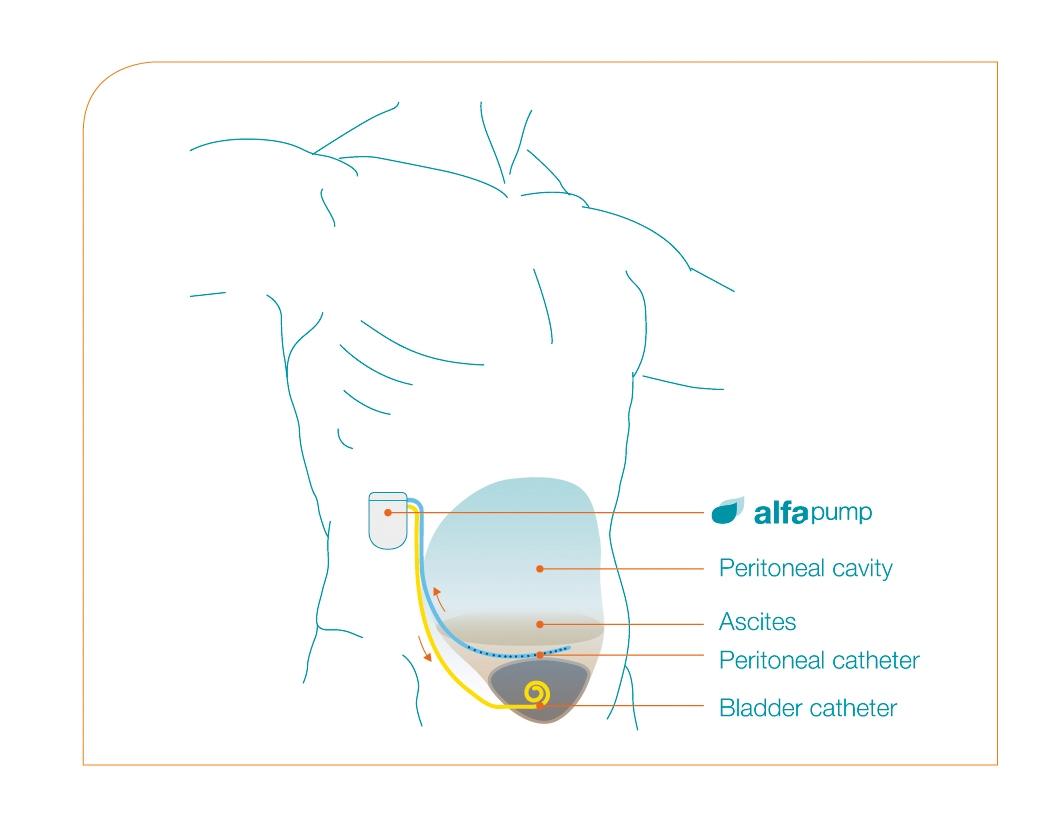 væske i bughulen behandling